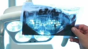 Что скрывают? 1 сезон Что скрывают стоматологи?